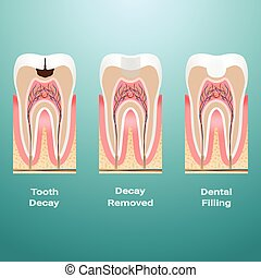 Treatment Of Caries. Dental Filling. Dental Caries Detailed Isolated On A Background. Vector Illustration.