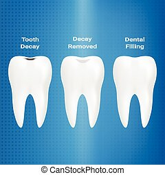 Treatment Of Caries. Dental Filling Isolated On A Background. Vector Illustration.