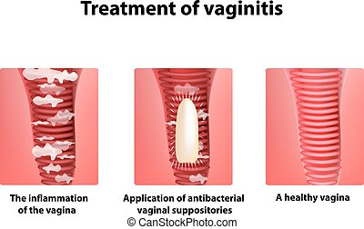 Treatment of vaginitis suppositories. inflammation of the vagina. Infographics. vector illustration on isolated background.