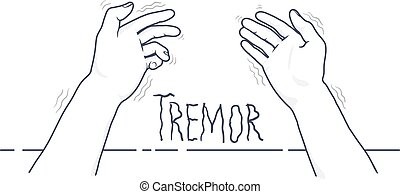 Tremor hands. First-person view of shaking hands. Symptom of...