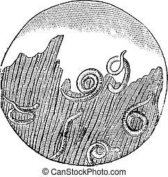 Trichinosis in the flesh, vintage engraving.
