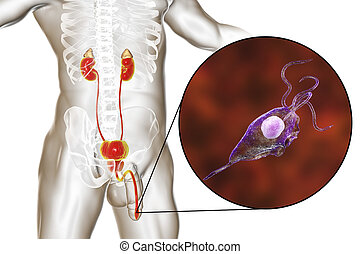 trichomoniasis, infektion, mann