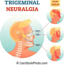 Trigeminal neuralgia medical cross section anatomy vector...