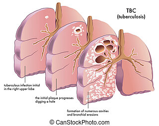 tuberculosis - medical illustration of the symptoms of...