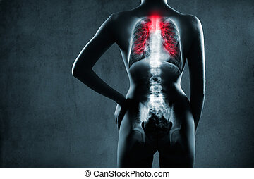 tuberculosis., röntgensugarak, tüdő, pneumonia, covid-19, ...