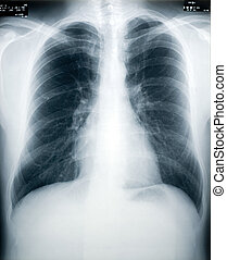 Tuberculosis Screening - An x-ray of a healthy male chest...