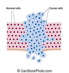 tumör, växande, celler, cancer