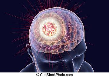 tumeur, cerveau, destruction