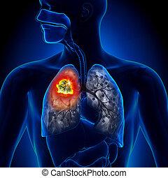 tumor, pulmón, -, detalle, cáncer