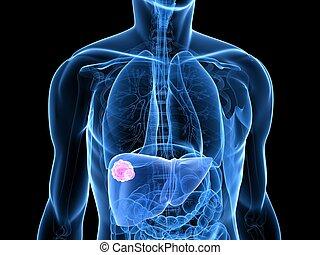 tumore, fegato