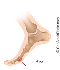 Turf toe, eps10 - sprain of the big toe joint, a sport...