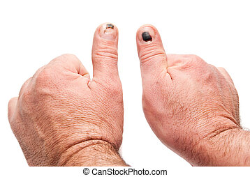 thumbs with injury - two thumbs with injury isolated on a...
