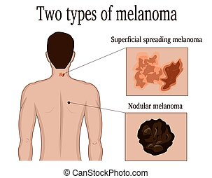 Two types of melanoma - Two types of skin melanoma on the...