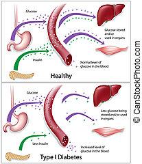 Type 1 diabetes - Diagram showing mechanism of type 1...