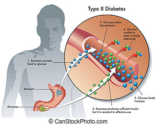type 2 diabetes - medical illustration of the symptoms of...