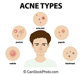 Types of acne on the skin or pimples
