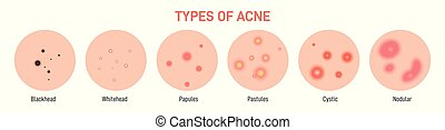 Types of acne, pimples,