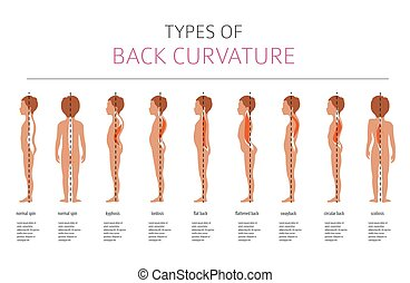 Types of back curvature. Medical desease infographic