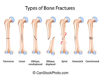 Types of bone fractures, eps8