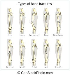 Types of bone fractures medical educational vector - Types ...