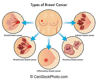 Types of Breast Cancer - medical illustration of the various...