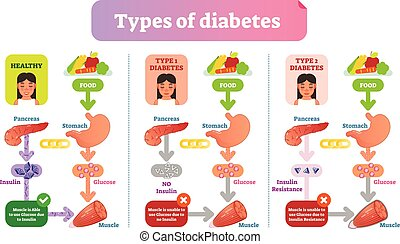 Types of Diabetes simple medical vector illustration scheme. Health care information diagram.