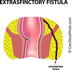 Types of fistulas of the rectum. Paraproctitis. Anus....