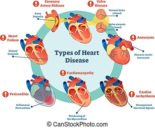Types of heart disease collection, vector illustration diagram