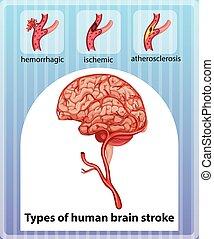 Types of human brain stroke illustration