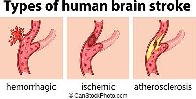 illustraiton of stroke brain disease cerebrovascular disease cvd cerebrovascular accident cva brain attack