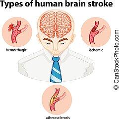 Types of human brian stroke illustration
