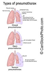 Illustration of three types of Pneumothorax - Closed, Open and Tension