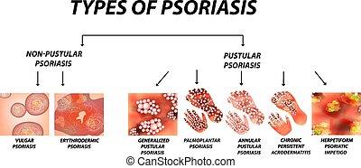 Types of psoriasis. Pustular and not pustular. Vulgar, erythroderma, erythrodermic psoriasis, persistent acrodermatitis, psoriatic impetigo. Eczema, skin disease dermatitis. Infographics. Vector illustration on isolated background.