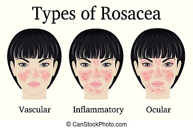 Types of Rosacea - Three types of Rosacea - vascular,...
