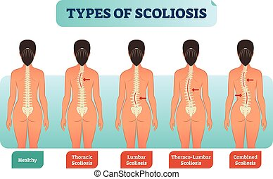 Types of scoliosis medical anatomical vector illustration diagram with spine curvatures.