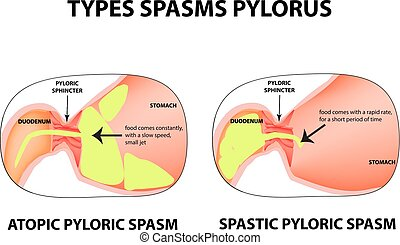 Types of spasms of the pylorus. Pylorospasm. Spastic and atonic. Pyloric sphincter of the stomach. Infographics. Vector image on isolated background.