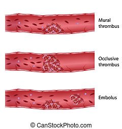 Types of thrombosis, eps10 - Mural, occlusive and embolus