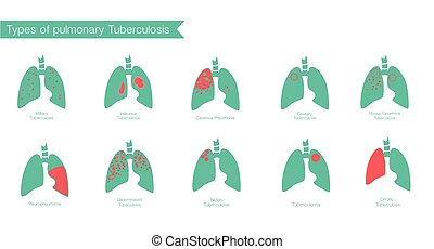 Types of tuberculosis. Vector silhouette medical illustration of human body organ - lungs with trachea. Poster for clinic, hospital. Respiratory system