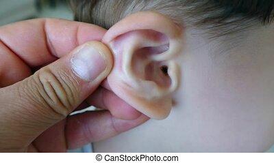 ucho, earwax, niemowlę, ból, zapalenie, ucho