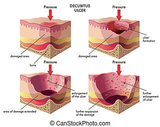 ulcère, decubitus