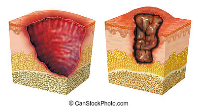 Image of two examples of ulcer or sore, open skin lesion or membrane