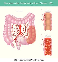 ulcerative, colitis