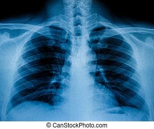 umano, raggi x, scansione