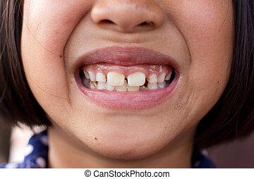 Unhealthy teeth