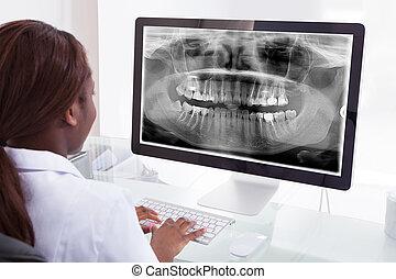 untersuchen, kiefer, zahnarzt, xray, klinik, edv, weibliche