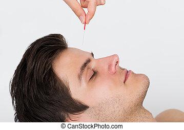 uomo, ricevimento, agopuntura, trattamento