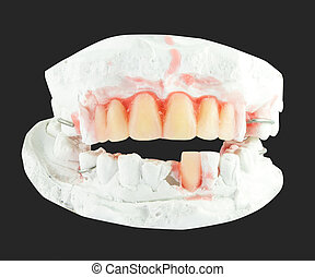 upper and lower plaster denture