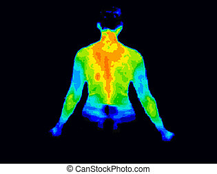 Upper body thermography - Thermographic image of the back of...