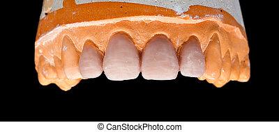Upper denture gypsum model on isolated black background