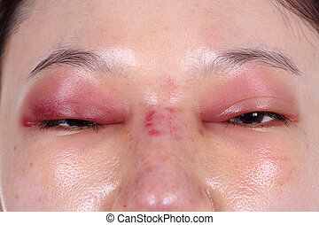 upper eye lid and nose swell after nose job plastic surgery